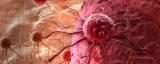 Знайдений головний ознака наближення раку